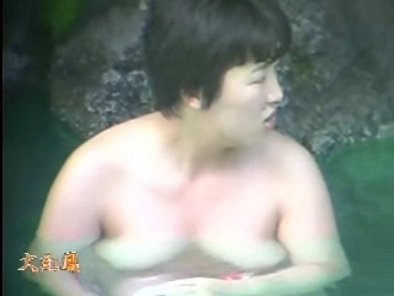 美容外科医が撮った女性器① ギャルのエロ動画 エロ画像 89PIX 2