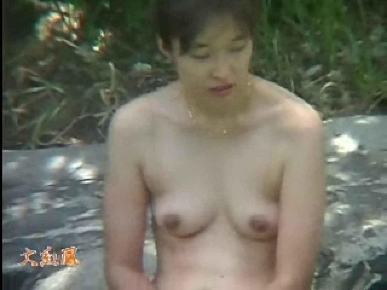 美容外科医が撮った女性器① 中出し 盗撮画像 89PIX 9
