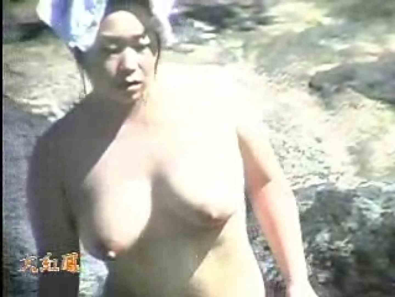 美容外科医が撮った女性器① フリーハンド えろ無修正画像 89PIX 28