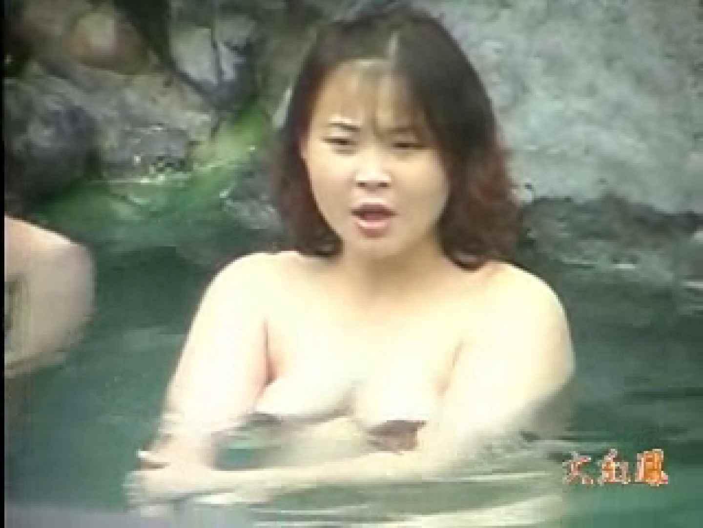 美容外科医が撮った女性器① ギャルのエロ動画 エロ画像 89PIX 62