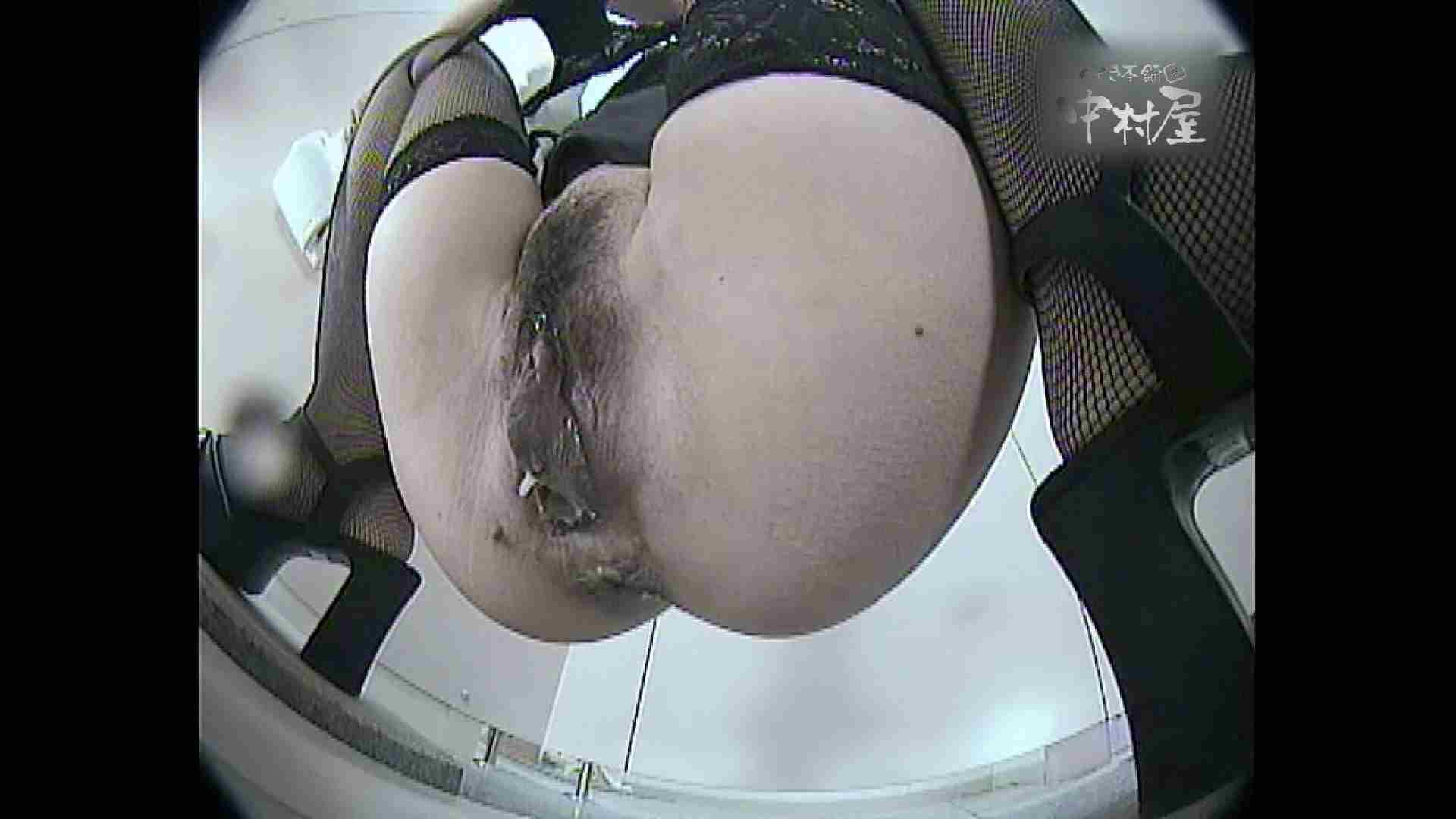 レースクィーントイレ盗撮!Vol.14 肛門編 セックス画像 107PIX 105