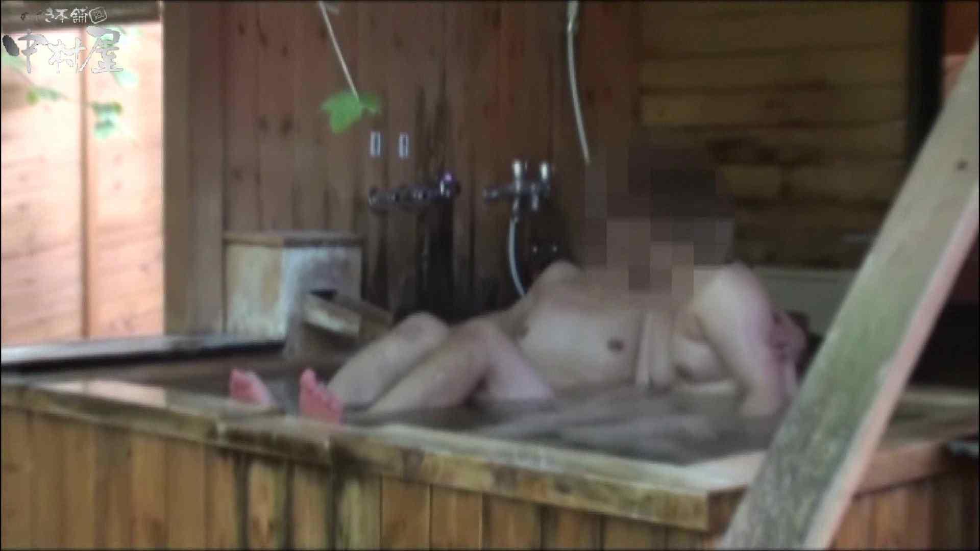 貸切露天 発情カップル! vol.03 オマンコもろ おまんこ無修正動画無料 110PIX 9